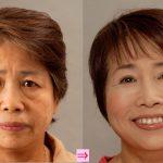 目の下のタルミ、脱脂術とタルミ取り、どちらがいいの? (画像あり)