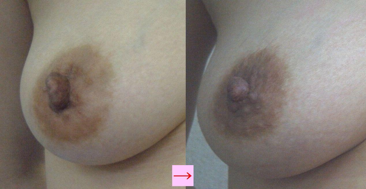 乳頭縮小1前後